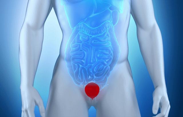 Low Pressure Fitness para incontinência urinária após cirurgia de próstata